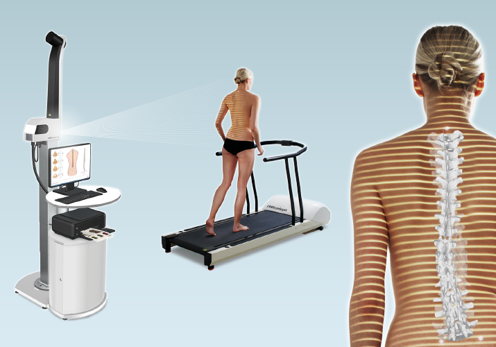 DIERS 4Dmotion: Dynamic Spine Analyis