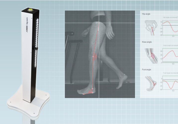 DIERS leg axis lateral: Video Gait Analysis