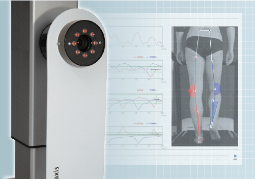 DIERS leg axis (posterior): Video Gait Analyis