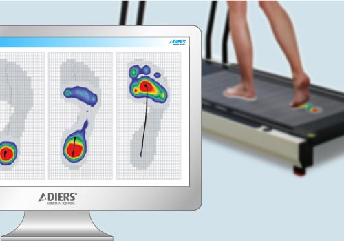 DIERS pedogait: Real-time Results of the Foot Pessure Measurement
