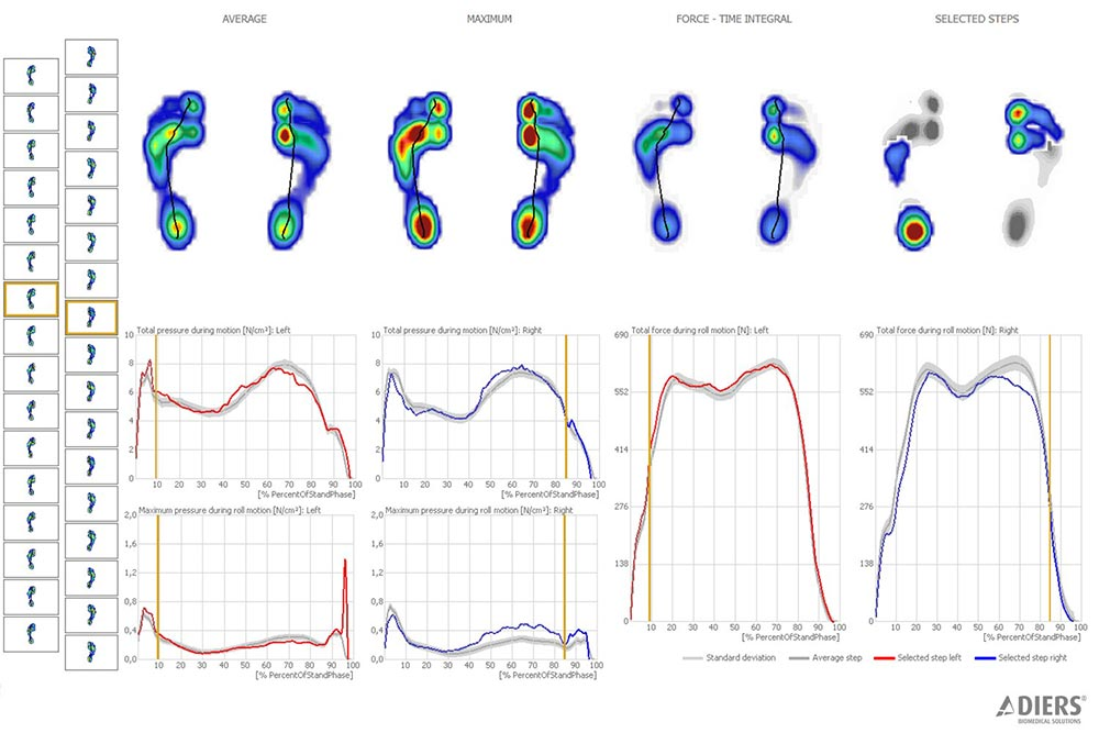 DIERS pedogait software: Dynamic Foot Pressure Measurement (Overview)