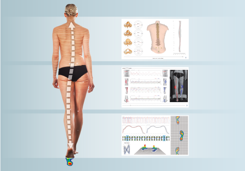 DIERS 4DmotionLab: Motion Analysis from Head to Toe