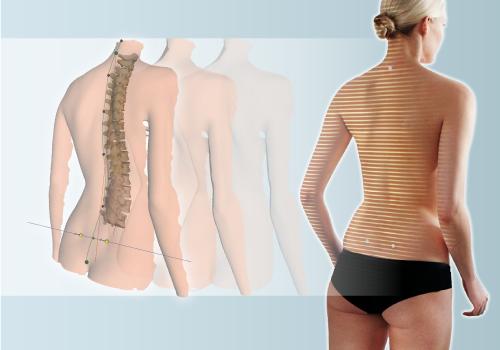 4Dmotion Technology: Dynamic 3D Spine Model