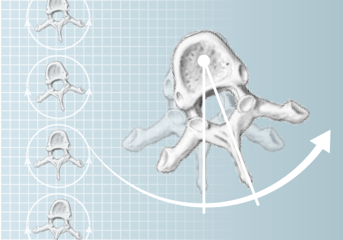 DIERS 4Dmotion: Analysis of Vertebral Rotation
