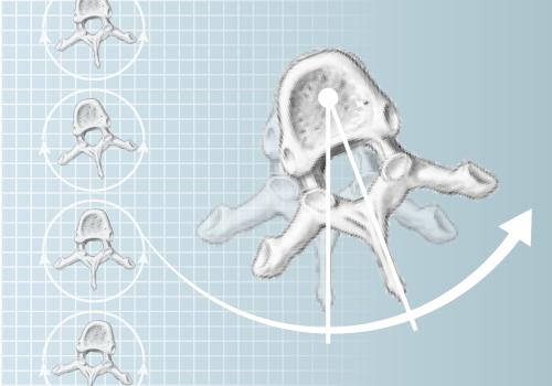 DIERS 4Dmotion: Analysis of Vertebral Rotation