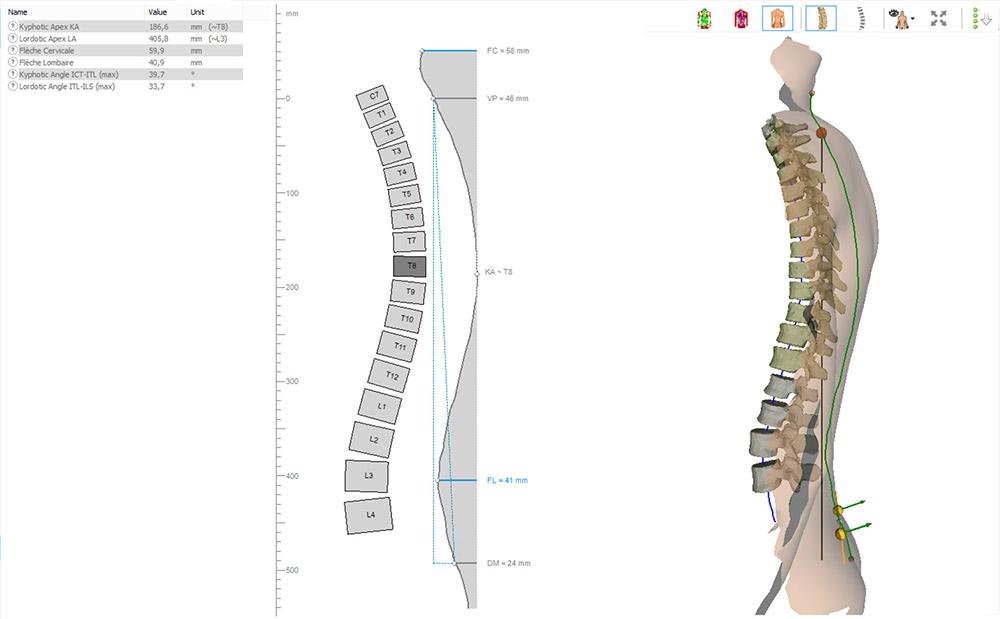 formetric 4D: Sagittal Profile