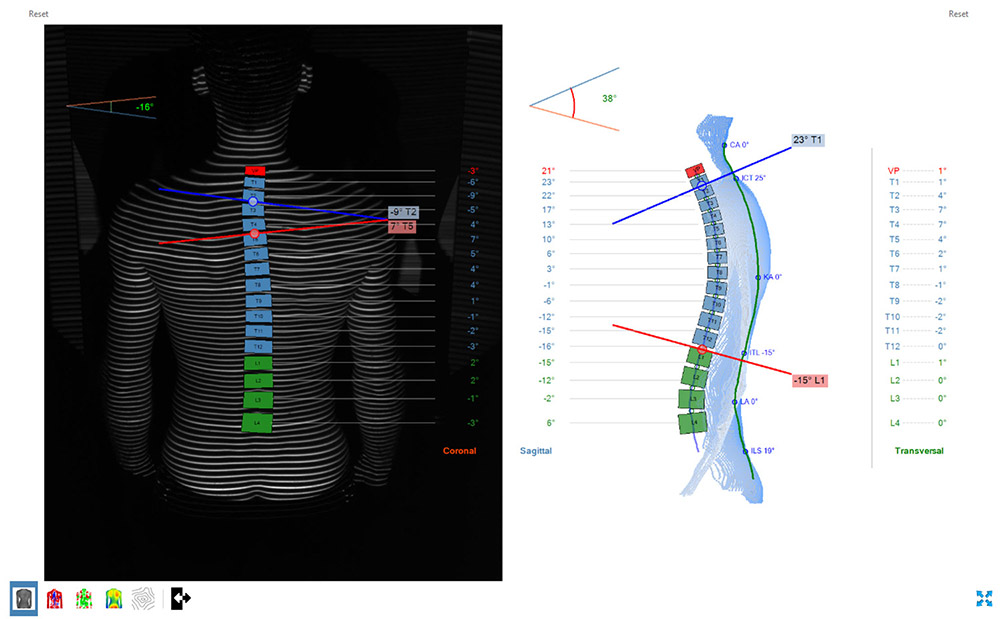 formetric 4D: Angle calculation between vertebral bodies