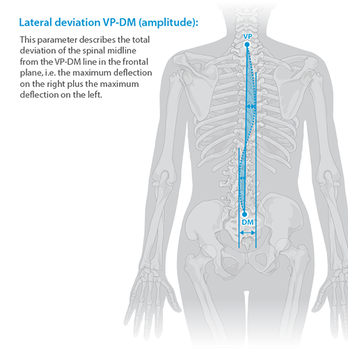 Lateral Deviation