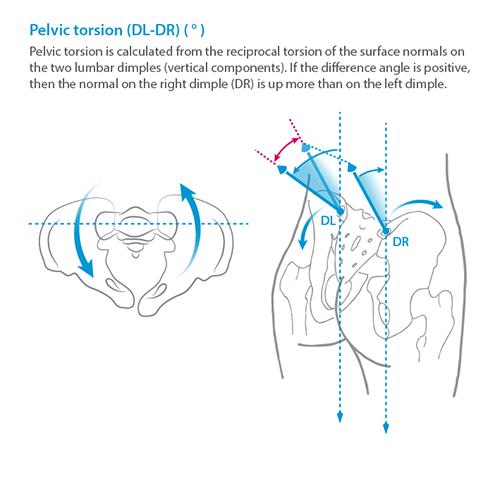 Pelvic Torsion