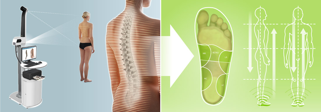 formetric+posture balance: posture correcting sensomotoric insoles