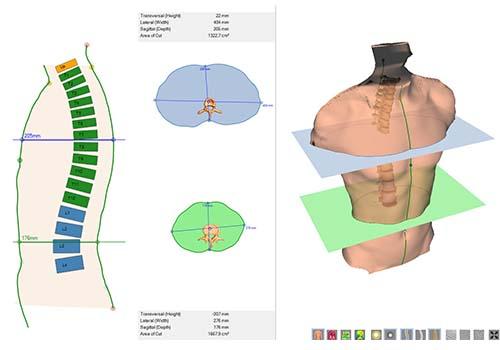 DICAM 3: torso scan