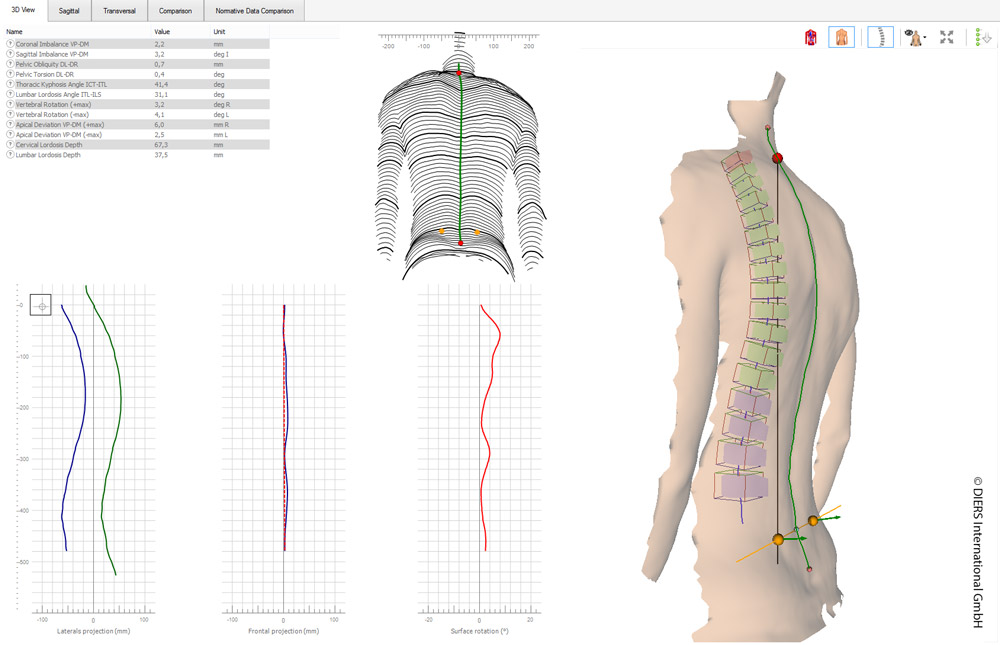 DIERS statico: 3D spine and posture analysis (3D-view)