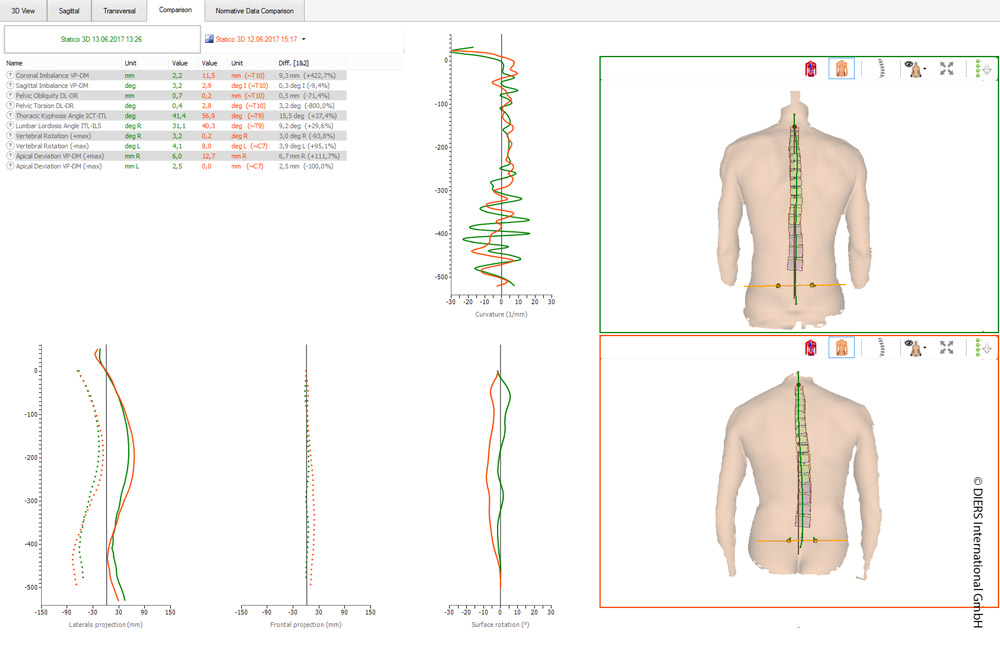 DIERS statico: 3D spine and posture analysis (comparison)