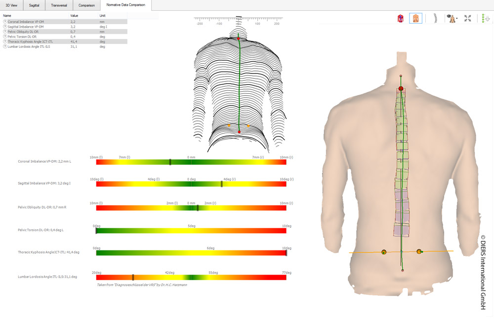 DIERS statico: 3D spine and posture analysis (normative data)
