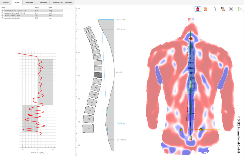 DIERS statico: 3D spine and posture analysis (sagittal)