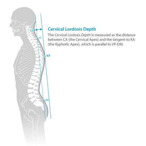 DIERS statico parameter: cervical lordosis depth