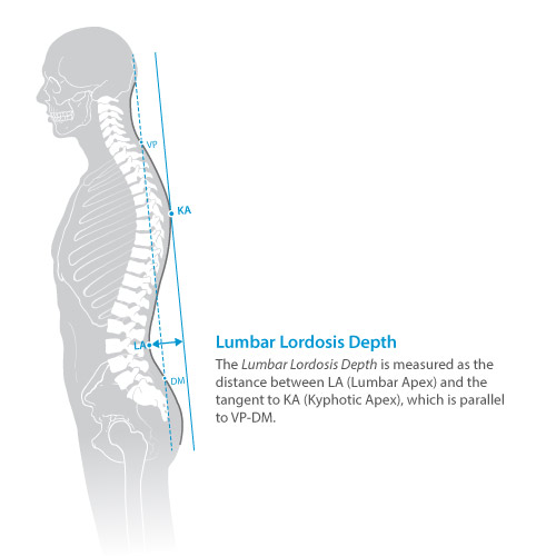 DIERS statico parameter: lumbar lordosis depth