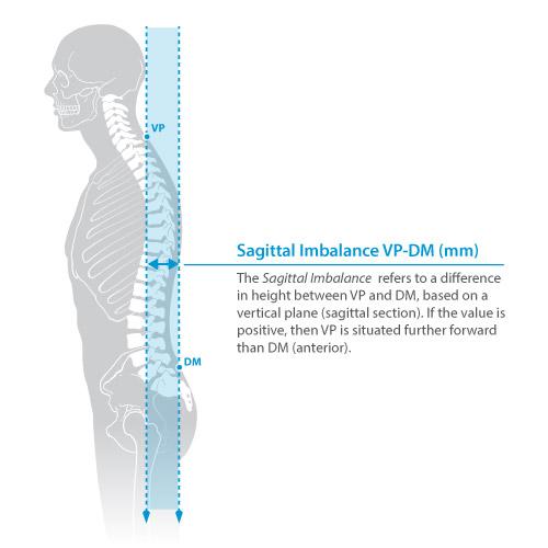 DIERS statico parameter: sagittal imbalance
