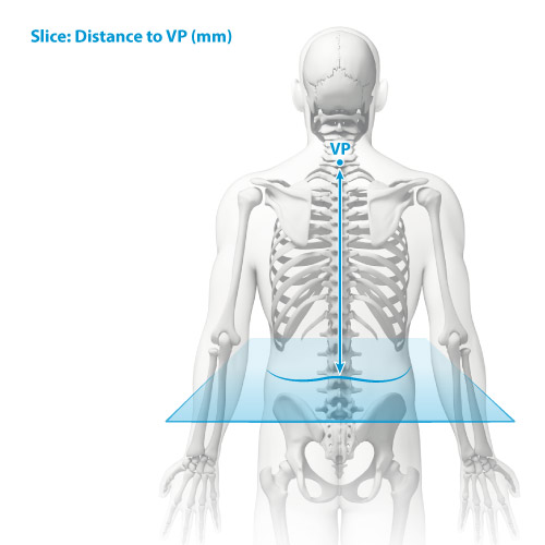 DIERS statico parameter: distance of the slice to VP
