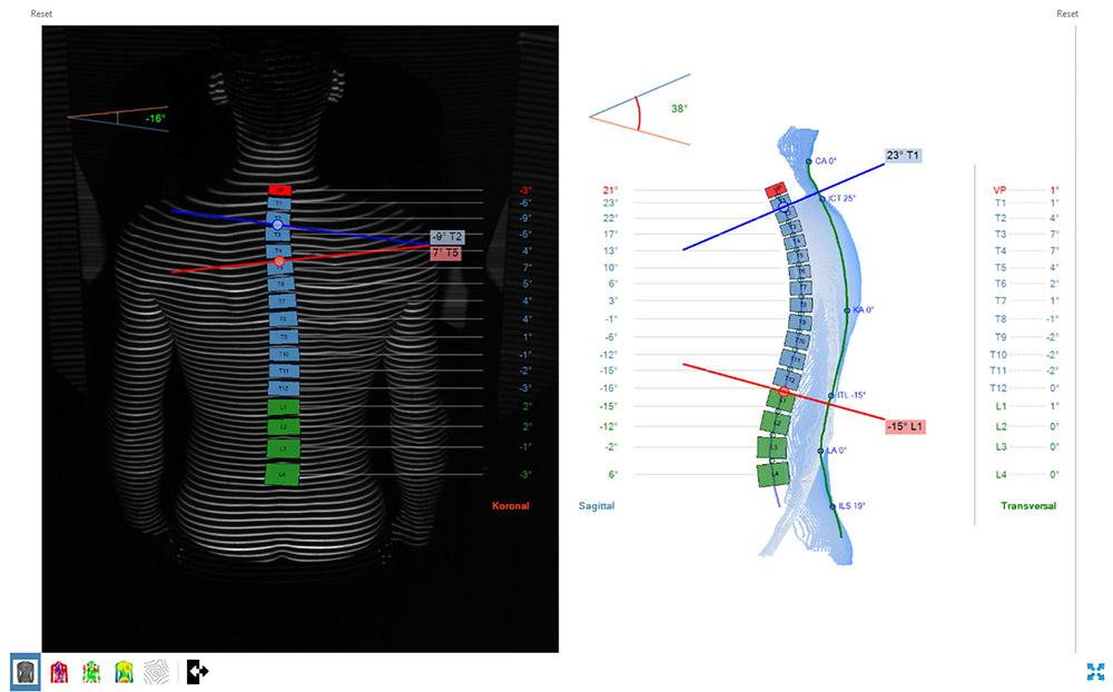 DIERS formetric 4D: 3D/4D Wirbelsäulen- und Haltungsanalyse (Skoliosewinkel)