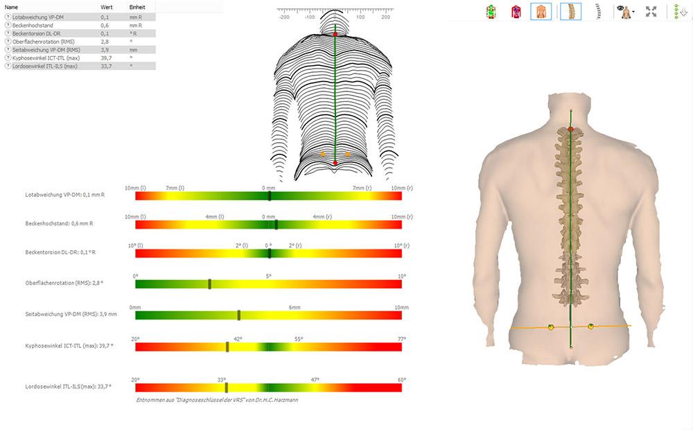 DIERS formetric 4D: 3D/4D Wirbelsäulen- und Haltungsanalyse (Normwerte)