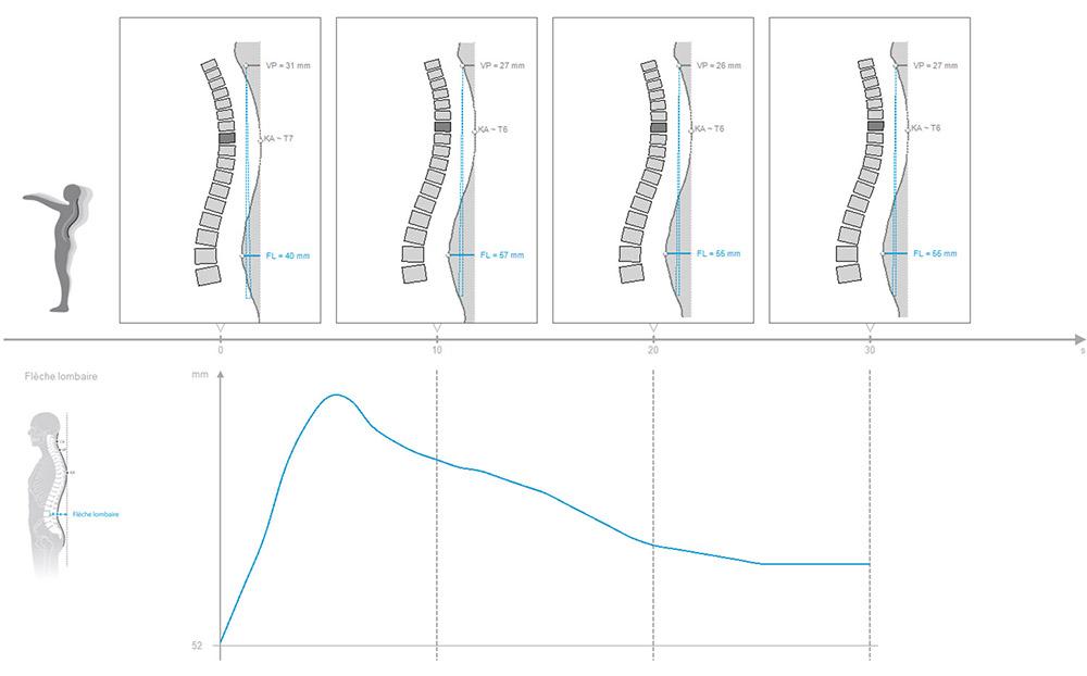 DIERS formetric 4D: 3D/4D Wirbelsäulen- und Haltungsanalyse (Matthiass-Test)