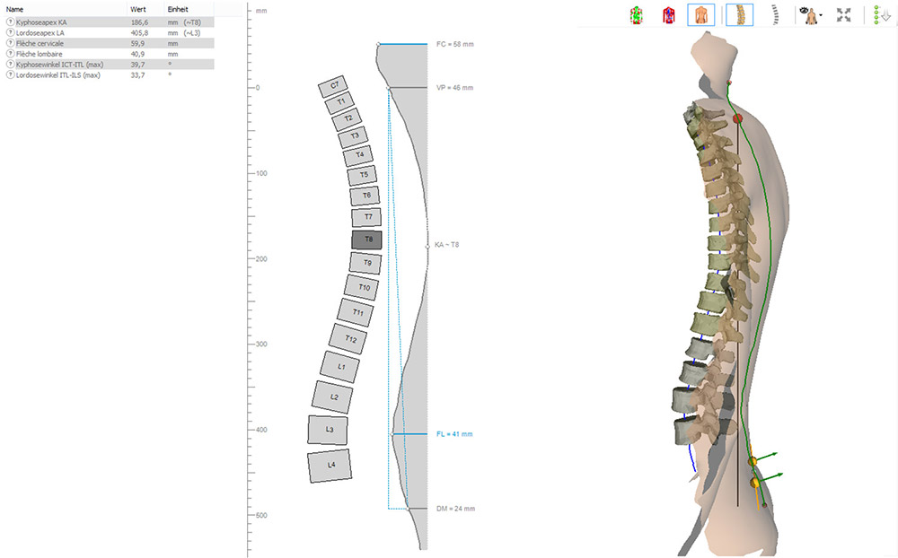 DIERS formetric 4D: 3D/4D Wirbelsäulen- und Haltungsanalyse (Sagittalprofil)