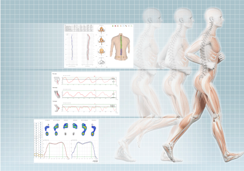 DIERS 4DmotionLab (high-performance): Motion Analysis while Running