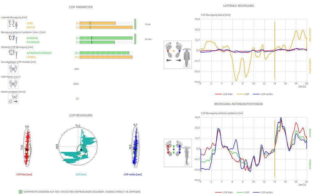 DIERS pedoscan - statische und dynamische Fußdruckmessung